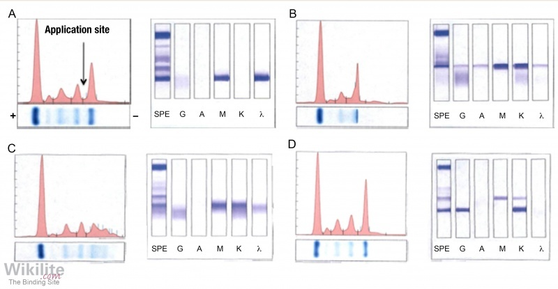 Figure 32.1. Serum electrophoresis of IgM monoclonal proteins.