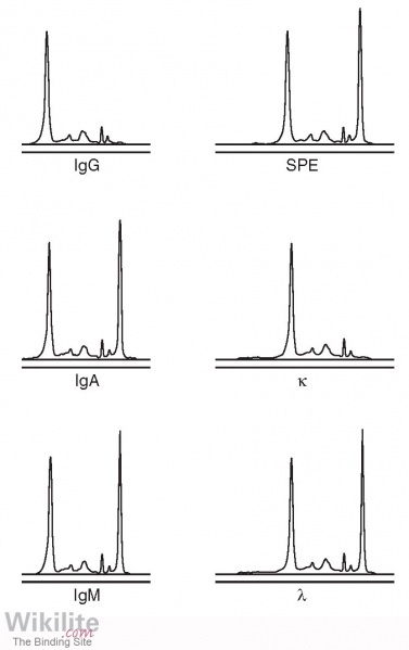 Figure 4.4. IgGκ immunosubtraction example.