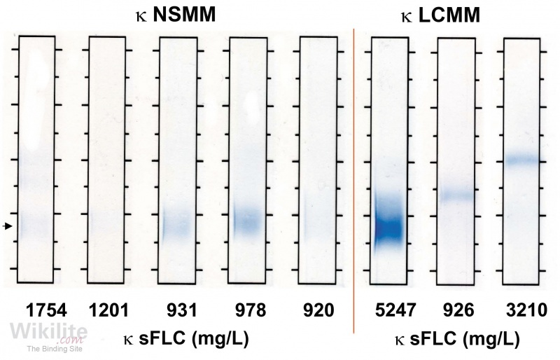Figure 16.2. Serum IFE from five patients with κ NSMM and three patients with κ LCMM.