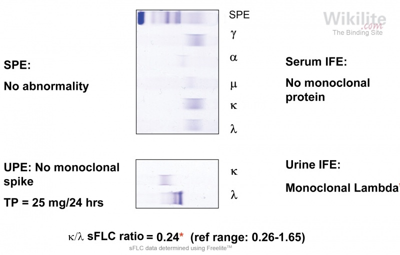 Figure 13.10. Serum and urine IFE on a patient with isolated urine FLC excretion.