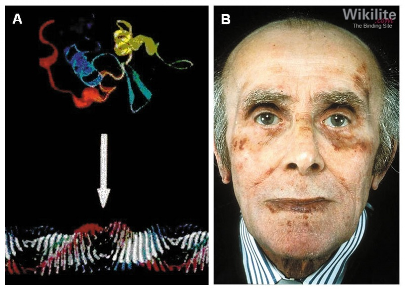 Figure 28.1. (A) AL amyloidosis showing formation of amyloid fibrils from FLC domains. (B) Classic facial features with periorbital purpura.