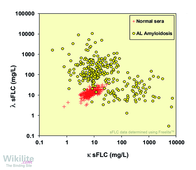 ​Figure 28.6. sFLCs in 262 patients with AL amyloidosis at diagnosis.