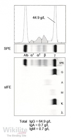 Figure 17.5. IgG monoclonal protein concentration by SPE compared with total IgG by nephelometry.
