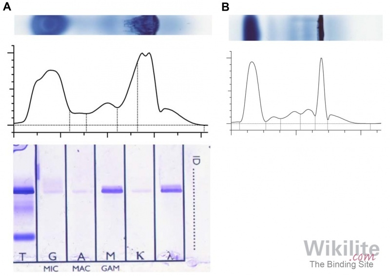 ​Figure 32.4. (A) SPE and serum immunofixation electrophoresis on samples at room temperature. (B) SPE on a sample at 37 °C.