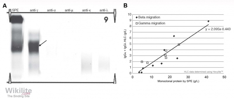 Figure 34.1. (A) Immunofixation electrophoresis of serum from a patient with γ-HCD.