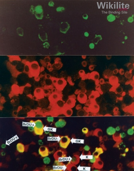 Figure 19.2. The same microscope field of an IgGκ MM bone marrow sample showing dual populations stained with anti-IgG fluorescein isothiocyanate (FITC, green) and anti-κ tetramethylrhodamine isothiocyanate (TRITC, red).
