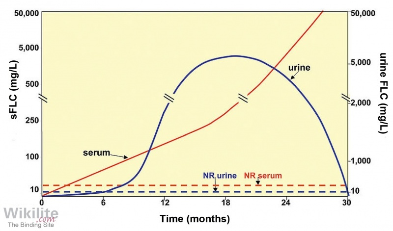 Figure 3.12. Changes in serum and urine free light chain concentrations during the evolution of a hypothetical patient with light chain multiple myeloma.