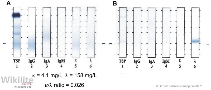 Figure 15.1. Serum and urine IFE from a patient with λ LCMM compared with sFLC immunoassay results.