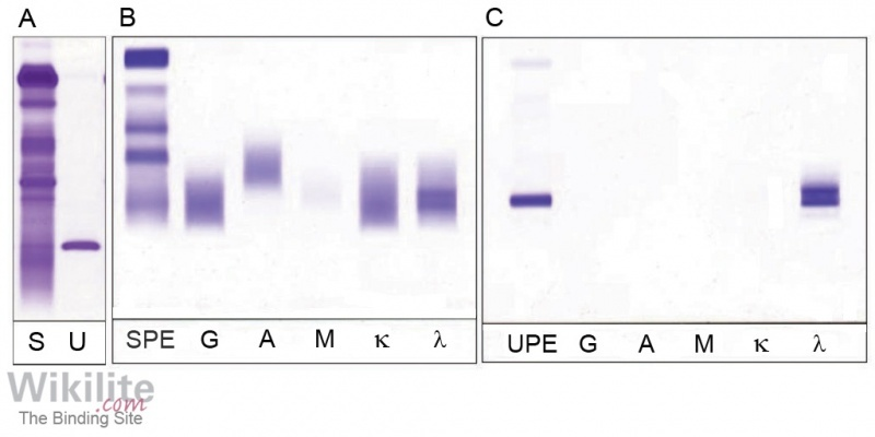 Figure 8.10. Serum and urine electrophoresis.