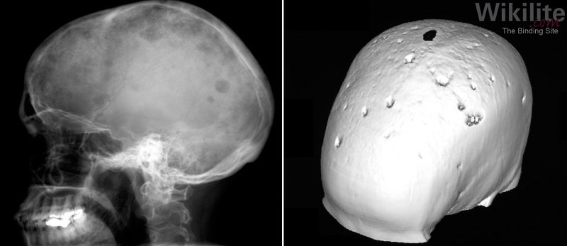 Figure 16.5. X-ray and computerised tomography (CT) scans of the skull in NSMM.