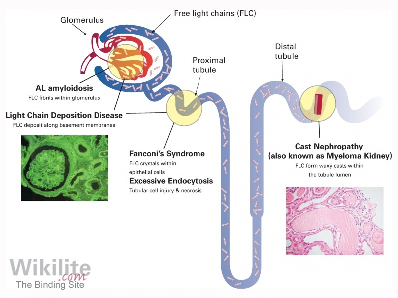 Figure 26.1. Renal injury caused by FLCs.