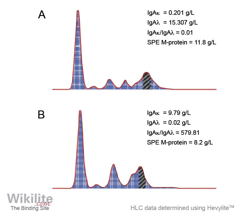 Figure 17.6. Quantitative Hevylite results in patients with (A) IgAλ and (B) IgAκ monoclonal proteins that co-migrate with other serum proteins by SPE